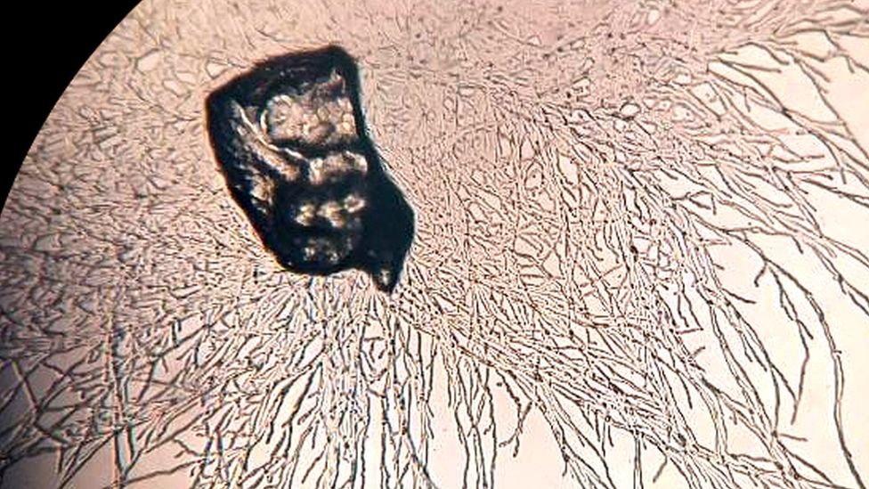 Bacteria Digests Plastic Under The Microscope