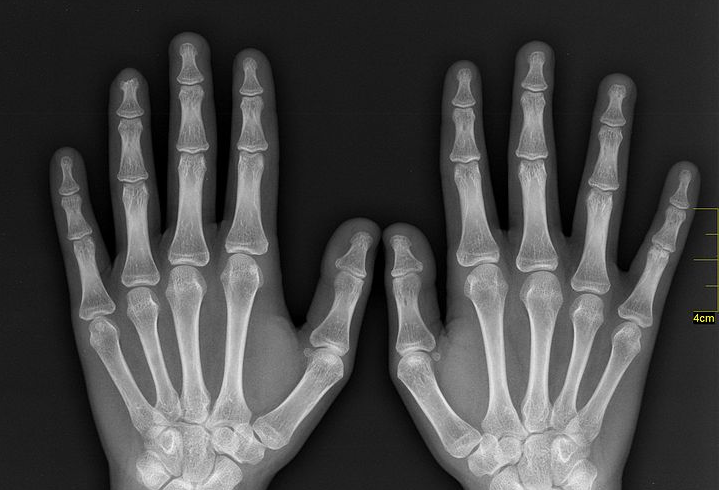 X Rays Can Get Very Expensive