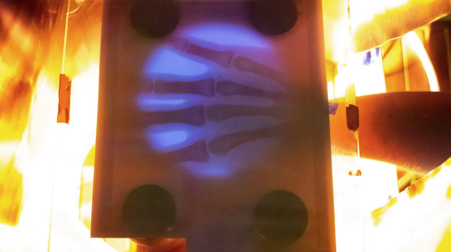 The Image From His Homemade X Ray Machine.jpg Large